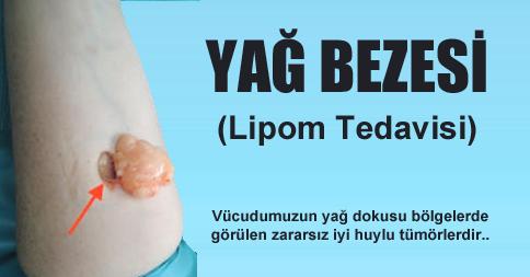yag-bezesi1