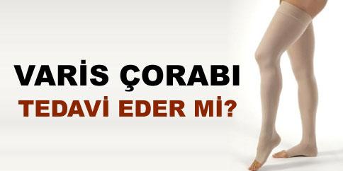 varis-corabi-tedavi-edermi